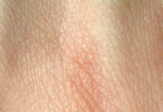 7 tips bij eczeem (je huid in balans te brengen)
