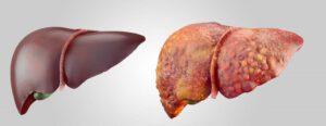 Gezonde en ongezonde lever
