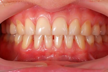 Hoe gezond is jouw tandvlees?