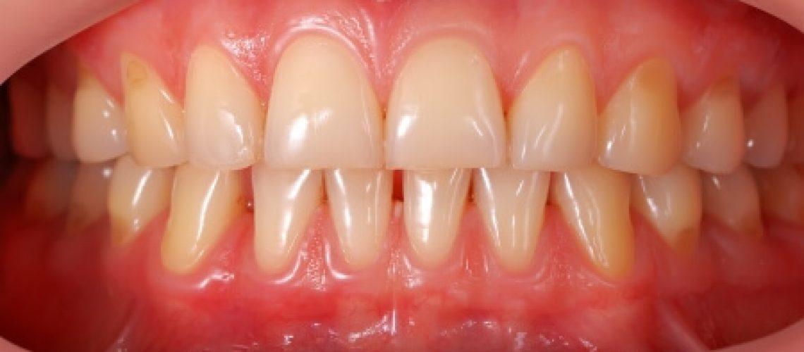 tandvleesproblemen